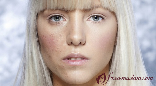 Как снять воспаление с кожи на лице thumbnail