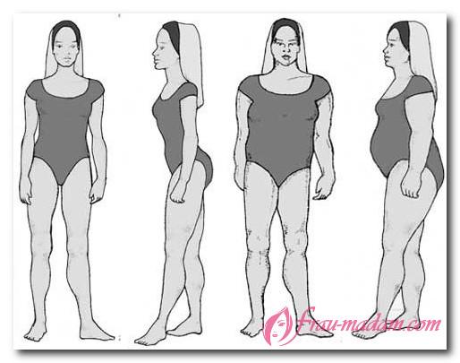 Надпочечниковый тип фигуры у женщин