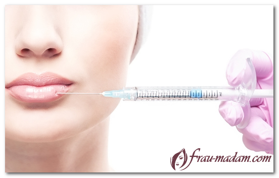 уход за губами после гиалуроновой кислоты