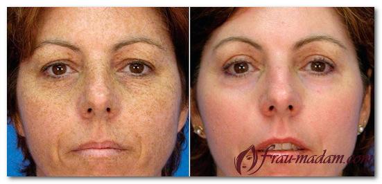 алмазный пилинг лица до и после фото