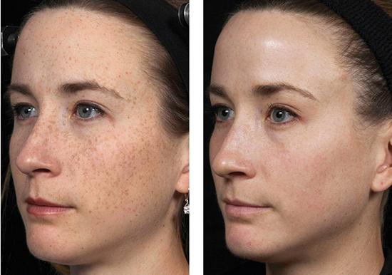 лазерный пилинг лица фото до и после