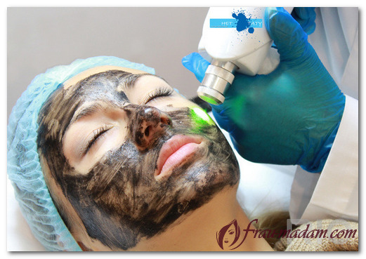 С какими проблемами кожи справляется карбоновый пилинг?