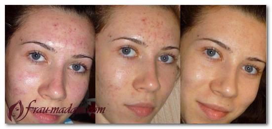 фитиновый пилинг фото до и после