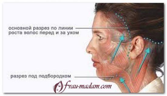 хирургические методы подтяжки лица