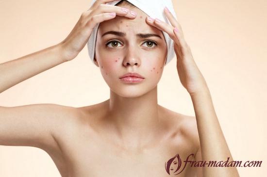 как ухаживать за прыщавой кожей лица