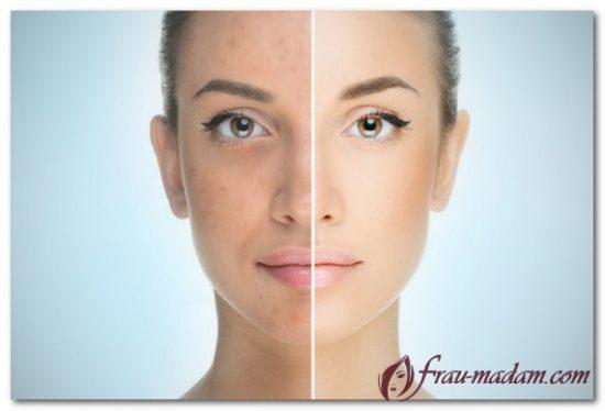 возрастные изменения кожи лица пигментные пятна