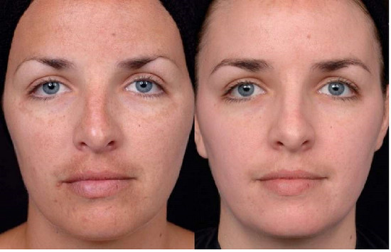 до и после химического пилинга