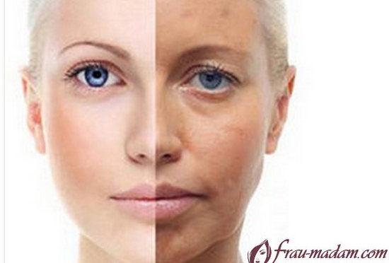 уход за кожей лица после пилинга