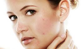 отшелушивание кожи лица в домашних условиях