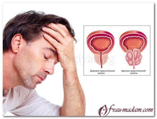 предстательная железа аденома мужчина