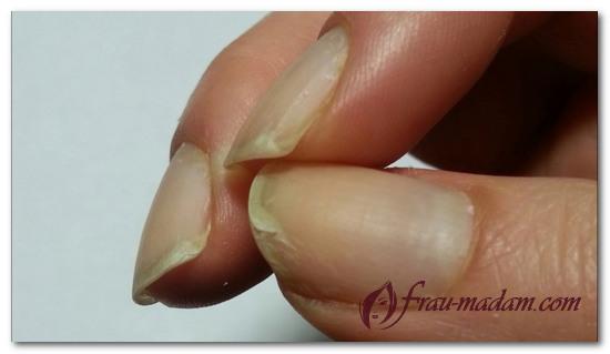 почему слоятся ногти на руках и ногах
